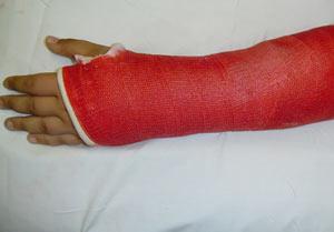 نتیجه تصویری برای کمک های اولیه در هنگام شکستگی استخوان